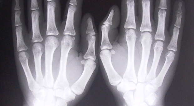 Lawrence Livermore: Gene Responsible for Fracture Healing Identified