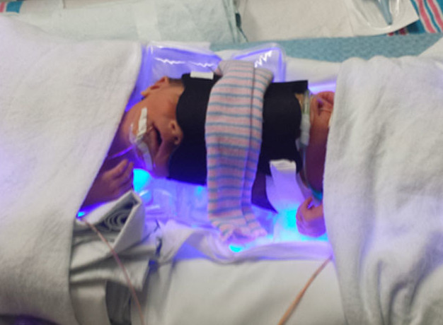 Separated Twins Continue Recovery [Video]