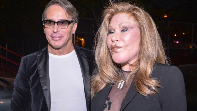 Jocelyn Wildenstein: New York 'catwoman' Accused of Attacking Boyfriend With Scissors