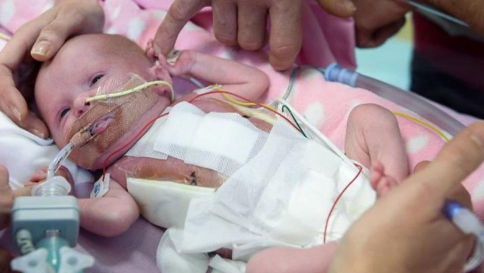 Baby Girl born with heart outside her body survives surgery