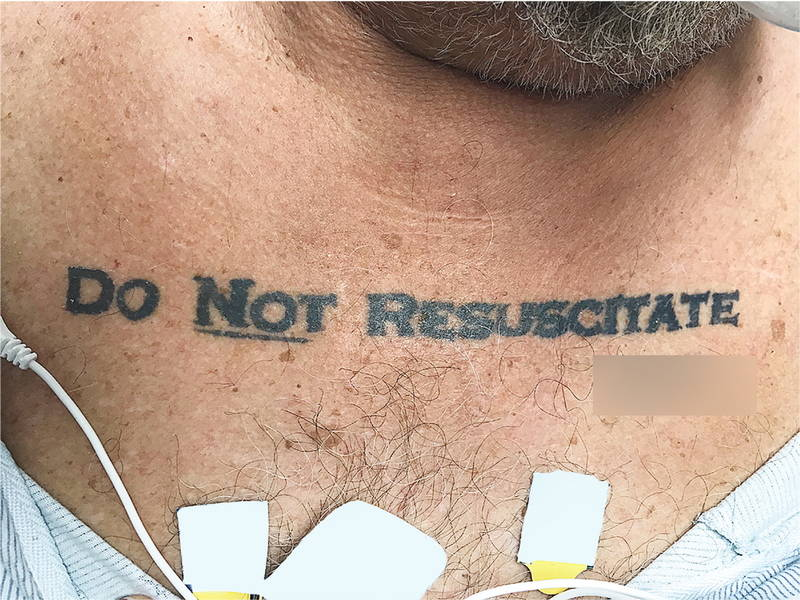 'Do Not Resuscitate' Tattoo Stops Doctors in Their Tracks (Photo)