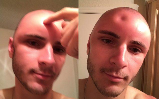 Guy's Head Gets So Sunburned It Swells To Twice Its Size (Photo)