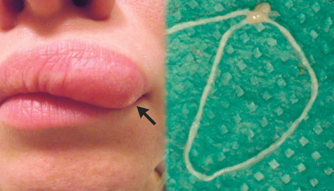 Lump was a worm? Lump on Woman's Face Turns Out to Have Living Thing Inside