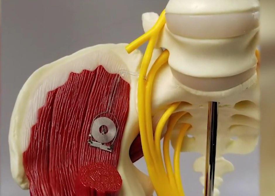 Bioelectronic medicine example: device speeds nerve healing