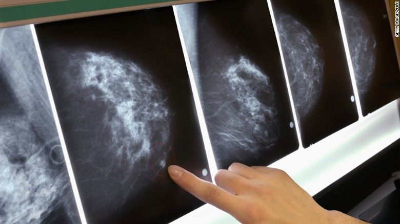 New breast cancer guidelines screenings, 4,000 more women could die