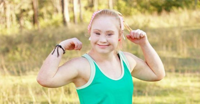 Madeline Stuart down syndrome model, defies the odds