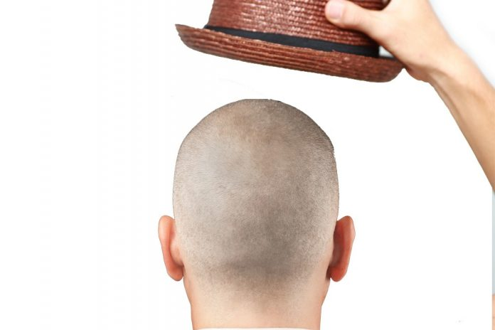 Reverse balding cap: Here comes a device to regrow hair on bald head